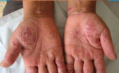 诊断牛皮癣疾病有什么依据