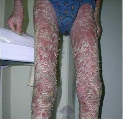 患上银屑病会出现什么症状