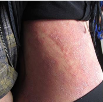 女性牛皮癣患者的保健护理措施