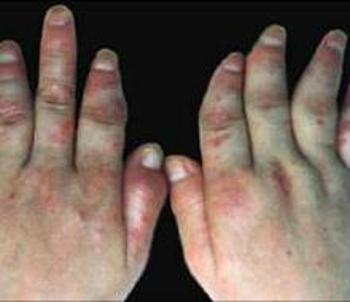 手部牛皮癣晚期症状