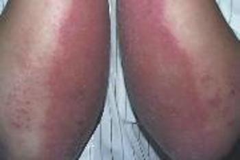 脚部牛皮癣有哪些病因